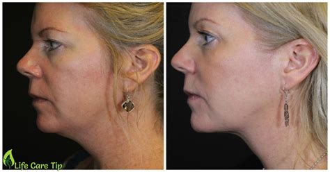 sagging jawline double chin home treatment