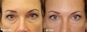Blepharoplasty, Eyelid Surgery Creates a Youthful Look ...