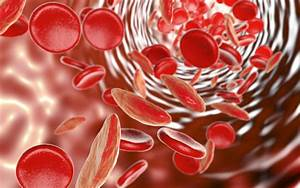 World Sickle Cell Day Highlights Disease Predominantly