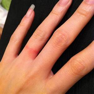 red rash under wedding ring things you didn39t know With how to treat wedding ring rash