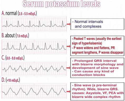 Ecg Hyperkalemia Hyperkalemia Fluid And Electrolytes