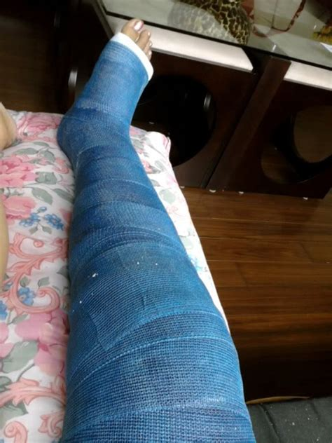 Casts And Toes Full Leg Cast Ober Fest