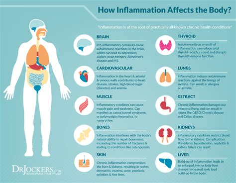 ways  reduce inflammation quickly drjockerscom