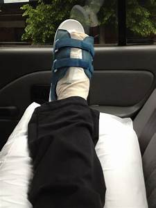 My Sesamoid Less Foot   So  I Went And Had A Sesamoidectomy