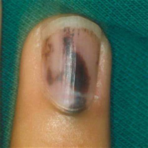 Bruised Nail Bed by The Underlying Problem Health Nails Magazine