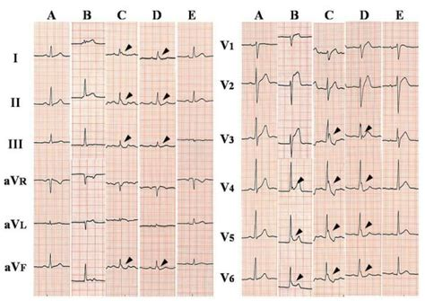 Indian Pacing And Electrophysiology Journal