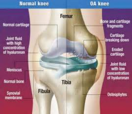 ... Treatment Option For Anyone Suffering From Osteoarthritis Pain Osteoarthritis