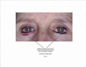 Permanent Makeup Eyeliner Gone Wrong - Mugeek Vidalondon