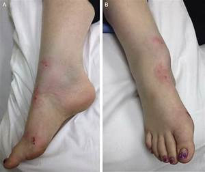 Irreducible Ankle Fracture Dislocation Due To Tibialis