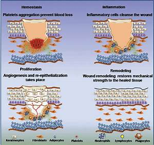 Pictorial Representation Of The Phases Of Wound Healing