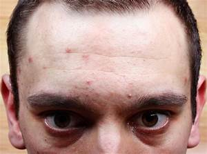 Prescription Drug Side Effects  These Meds May Be Behind Your Adult Acne