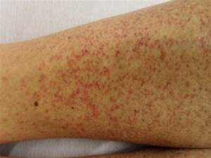 Skin Lesion Of The Patient On Lower Extremities