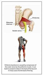 Sciatic Nerve Archives
