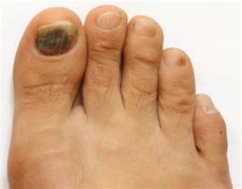 Bruised Nail Bed by Color Changes To Toenails Potential Causes And