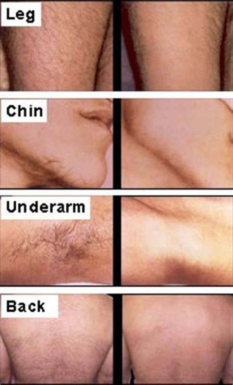 hair today  tomorrow  facts  laser hair removal