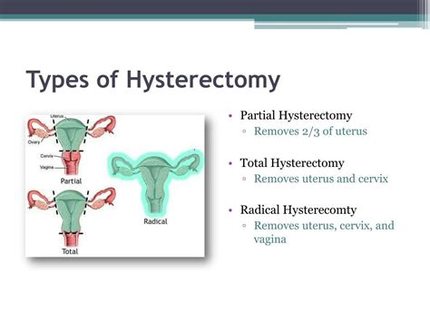 PPT - Hysterectomy PowerPoint Presentation, free download ...