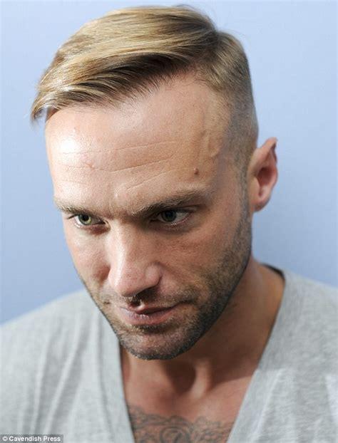mens haircuts  receding hairline haircuts