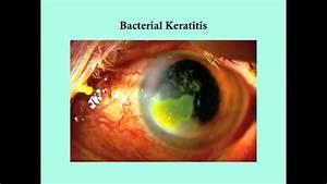 Keratitis - Crash  Medical Review Series
