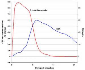 CRP vs ESR Assessing & Measuring the Inflammatory Response CRP
