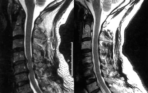 surgical disorders   cervical spine