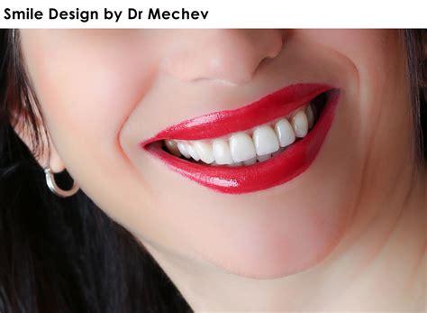 smile by design smile design by dr mechev la mesa dentist