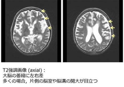 大脳 皮質 基底 核 変性 症