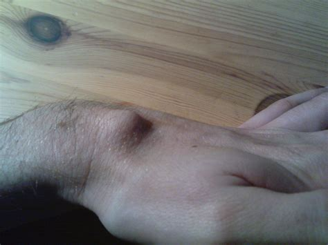 Ganglion Cyst Pop Or Not Popping