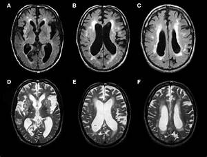 Brain Mri Scans Of A Patient With Suspected Vascular