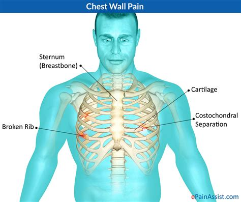 Know What Can Cause Chest Wall Pain And Its Treatment