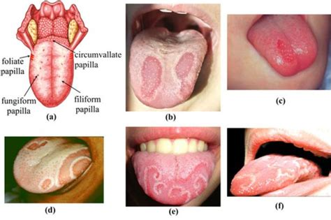 pictures  geographic tongue  health advisor
