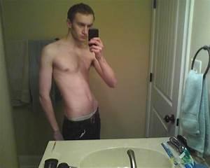 23 Yo Male Steroid Use Of A Work