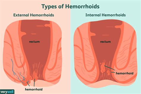 What Causes Hemorrhoids Women