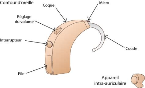 anatomie d une proth 232 se auditive ooreka