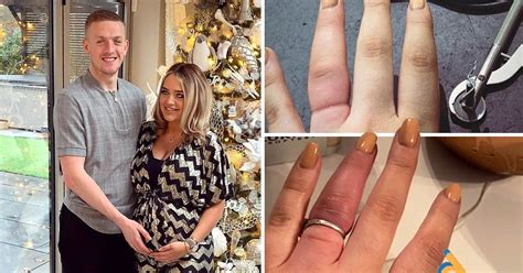 pickford s fiance cuts off engagement ring as finger swells metro news