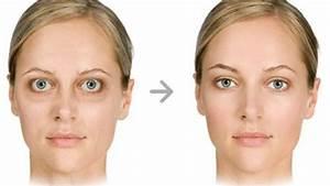 Thyroid eye disease – Thyroid Center of Santa Monica