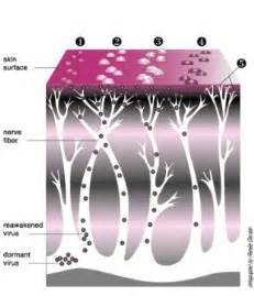 the stages of herpes understand the herpes virus better