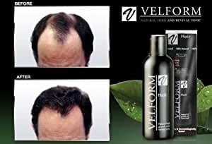 Amazon.com : Velform Hair Grow Tonic Stimulates Hair