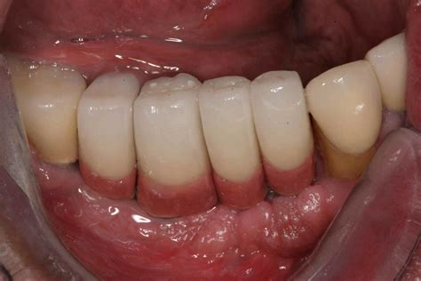 cement dental implant crowns counter teeth cemented gum long porcelain colored covers