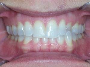 Before and After - Raleigh NC | Wells Orthodontics