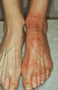 Acrodermatitis; Gianotti-Crosti Syndrome; Infantile ...