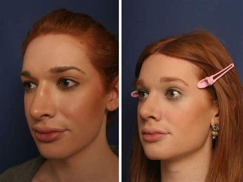 Pin on Plastic surgery & body enhancements...