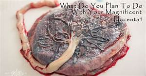Ehew   Woman Shares Photos Of Her Placenta  Writes About