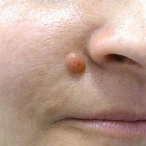 Removing Facial Mole - Bbw Mom Tube