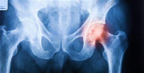 douleur dos cancer arthrose ne terminez pas en chaise roulante sant 233 nature innovation