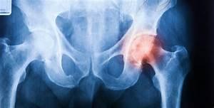 Douleur Milieu Dos Cancer : arthrose ne terminez pas en chaise roulante sant nature innovation ~ Medecine-chirurgie-esthetiques.com Avis de Voitures