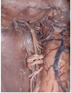 Type I  Absence Of The Posterior Root Of The Wrst Cervical