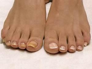 Грибок ногтя на ноге лечение медным купоросом