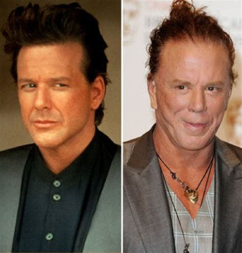 The Evolution Of Mickey Rourke Before And After Plastic ...