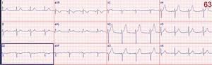 Dr  Smith U0026 39 S Ecg Blog  Ten  10  Examples Of Hyperacute T