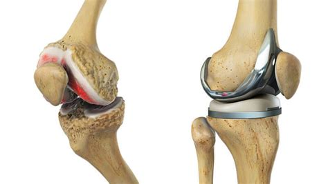 Knee Replacement Market analysis by Top Player,Report ...